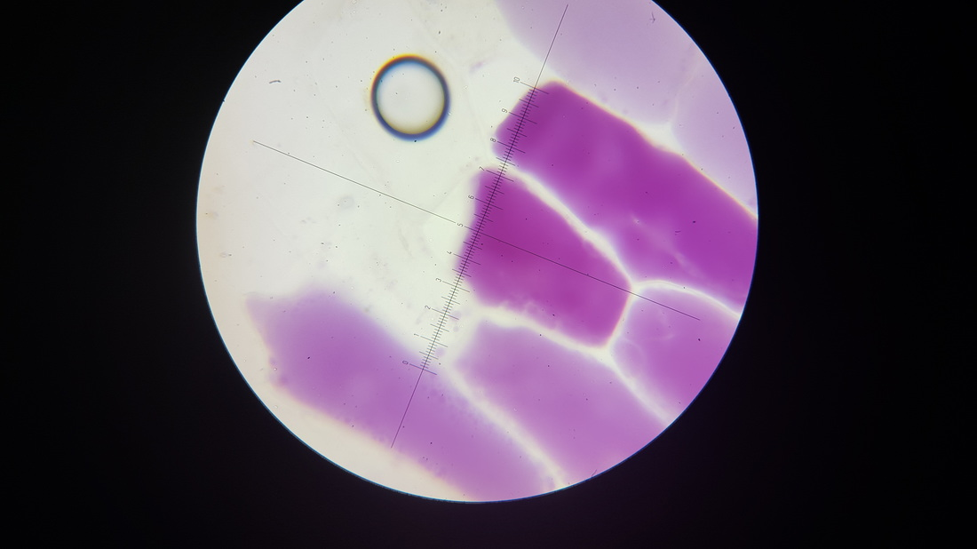 onion cells in sucrose The observation under the microscope of a cell of an onion skin soaked for 15 minutes in 1 molar sucrose solution showed that the cell membrane shrunk away from the cell wall in response of the hypertonic environment.